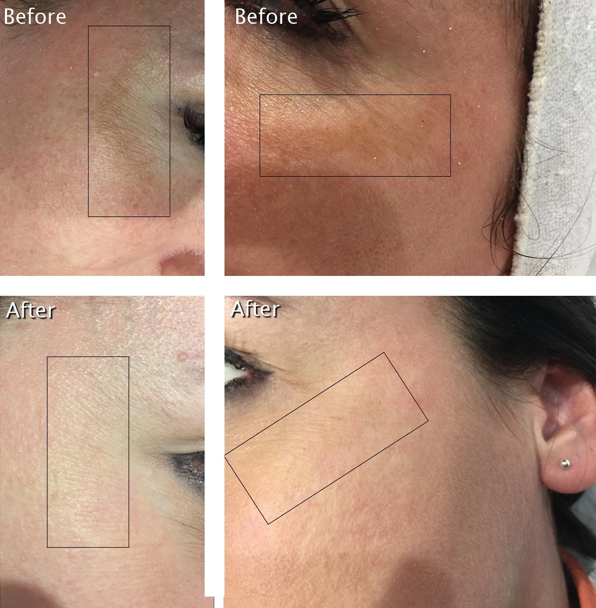 Beautylicious IPL Photorejuvenation Treatment