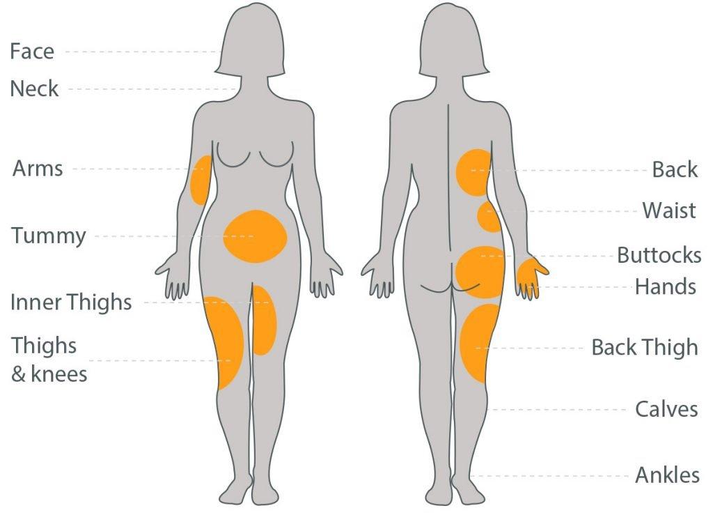 LipofirmPro Treatment Areas